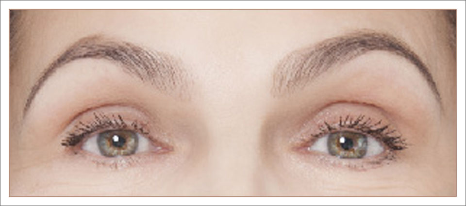 brows-page-before-and-after-2